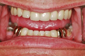 frame_teeth_Larry--after